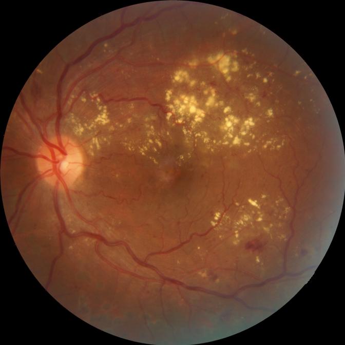 Fotografia Retina con liquido