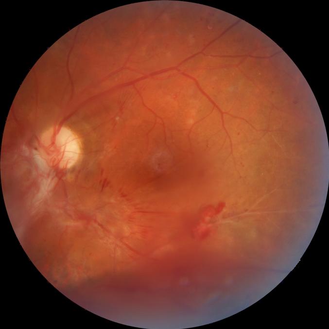 Fotografia Retina con hemorragias