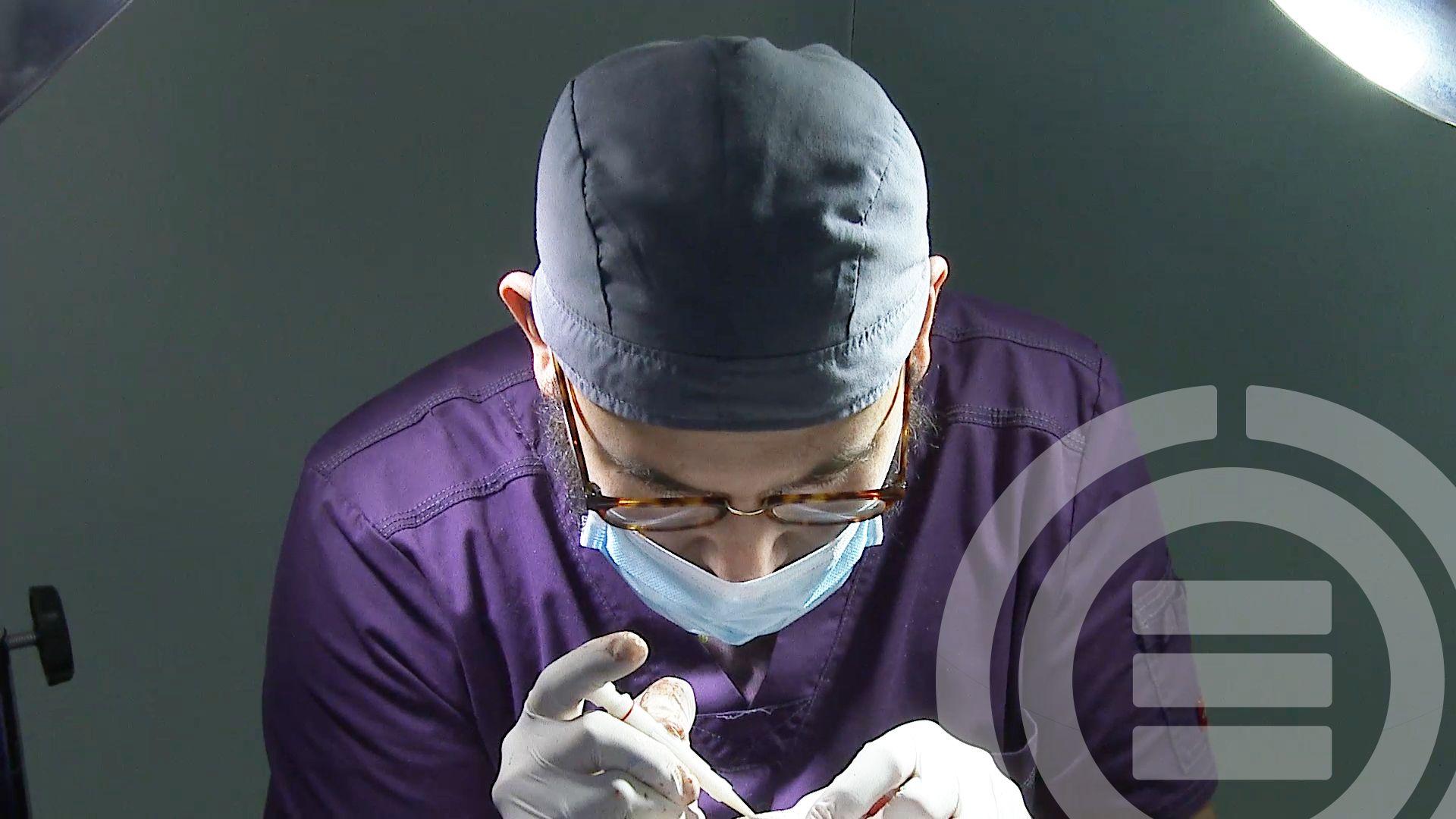 Fotografia Dr. Enrique Orozco realizando Injerto Capilar