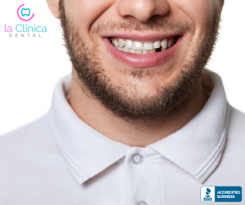 En La Clínica Dental estos son los principales motivos por los que se puede perder un diente en adultos