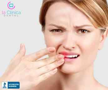 6 razones más comunes por las que sangran las encías, de acuerdo con datos de  La Clínica Dental