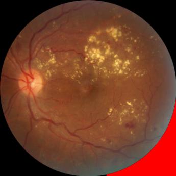La primera causa de ceguera en México por Retina Center Tijuana
