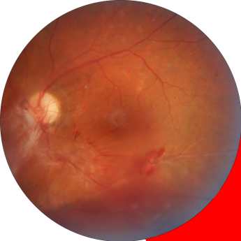 Foto de Retina con hemorragias