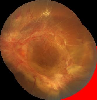Foto de Desprendimiento de retina por diabetes