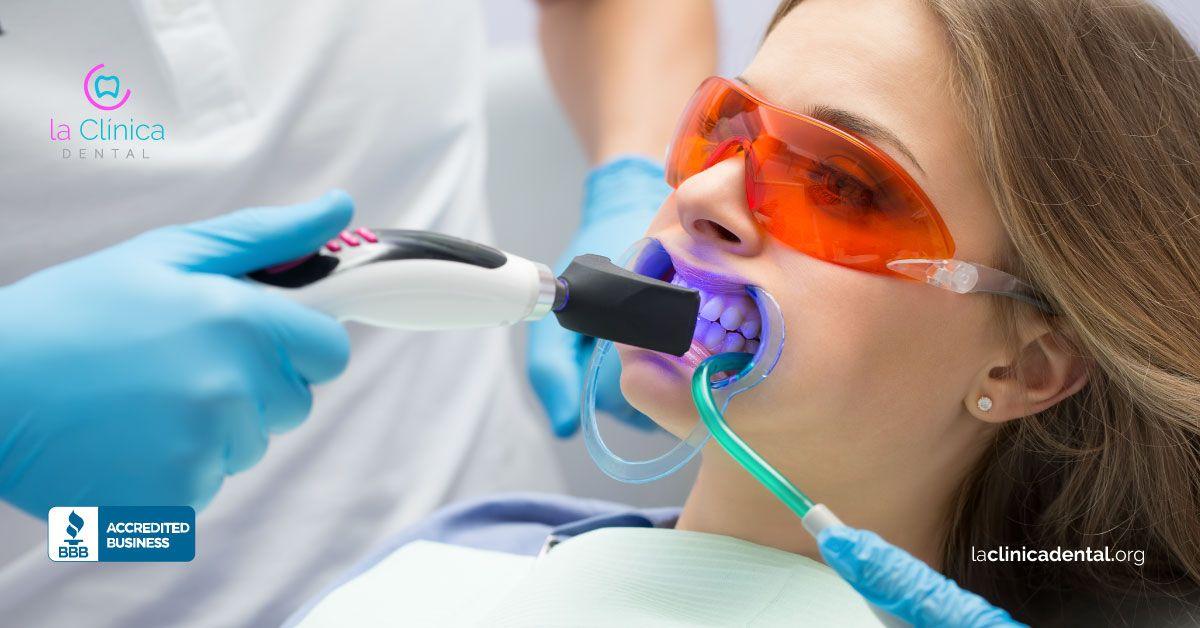 blanqueamiento dental con lo ultimo en tecnología