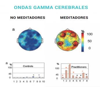 Foto de Ondas Gamma Cerebrales, las ventajas de meditar.
