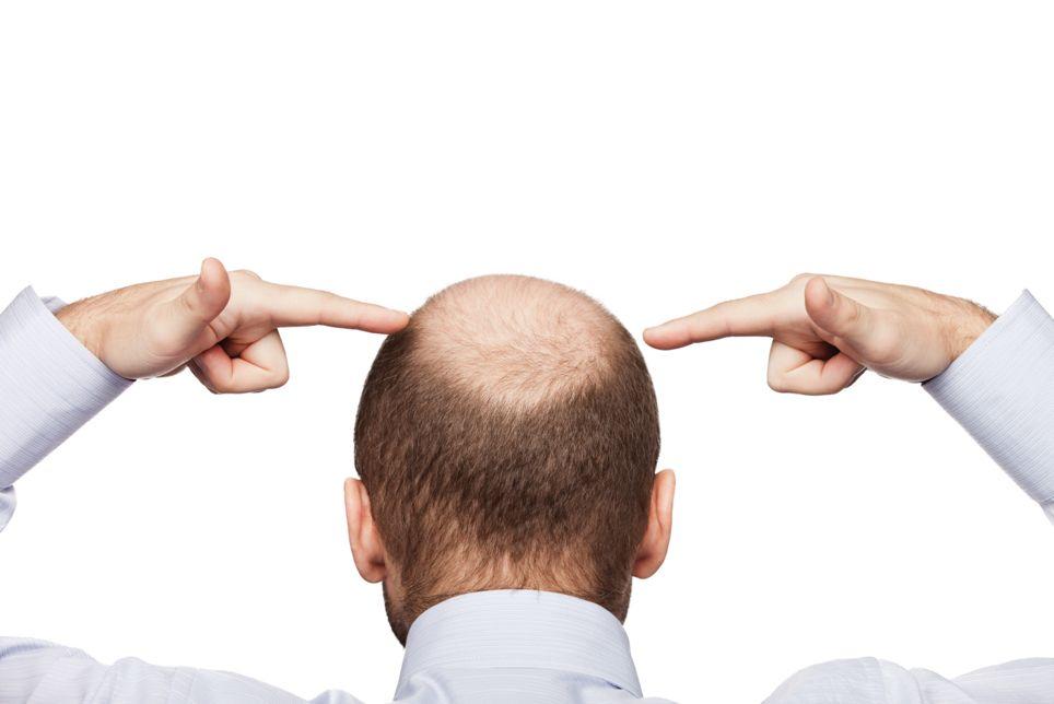 Fotografia Alopecia